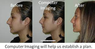 In some cases, medical insurance can cover a portion or all of the cost of septoplasty and/or turbinectomy, two techniques that are often combined with rhinoplasty. Expert Nyc Rhinoplasty Surgeon Dr Garrett Bennett Ny Sinus Rhinoplasty Surgeon