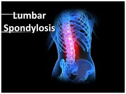 Image result for spondylolysis lumbar region