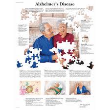 Stages Of Alzheimer S Disease Chart Alzheimers Disease Chart