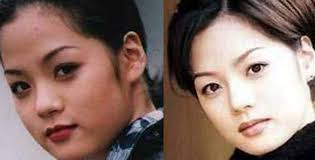 korean actresses plastic surgery before after3