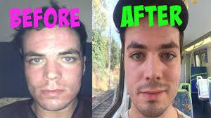 vitamine c tegen acne