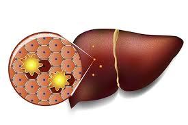 Imagini pentru ficat gras