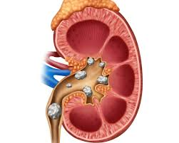 Preventing And Eliminating Kidney Stones Thriftyfun