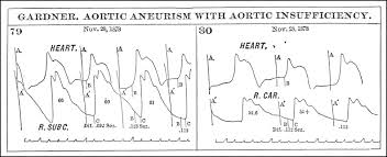 Chart Marking In Polygraph The Sphygmograph In America Writing The Pulse Sciencedirect