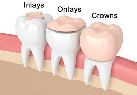 dental onlay inlays and onlays dentist west san jose ca