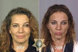 drug addict before and after. but in her \u0027after\u0027 shot, she is wrinkled, and haggard, with a zombie expression. drug addict before after