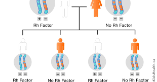 Rh Incompatibility Chart Rhesus Hemolytic Disease
