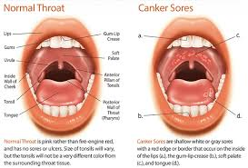 best canker sore treatment in india