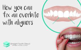 how you can fix an overbite with aligners