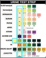 Urine Stick Colour Chart Detailed Urinalysis Chart Results Urine Drug Test Color