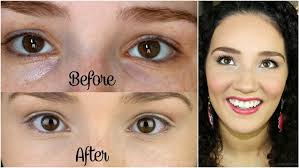 diy get rid of dark circles and wrinkles under eyes naturally