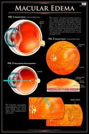 Eye Wall Charts Macular Edema Eye Wall Chart 517 Magcloud