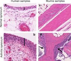 Fibroblast-like synoviocyte metabolism in the pathogenesis of ...