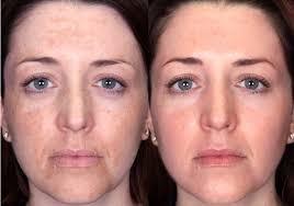 """Résultat de recherche d'images pour """"les taches noir sur le visage AVANT ET APRÈS"""""""