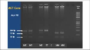 Mike, erek and missy sit down for sokast episode 73: Gel Electrophoresis Of Agt Gene 73 And 31 Bp Mm Genotype 104 73 And Download Scientific Diagram