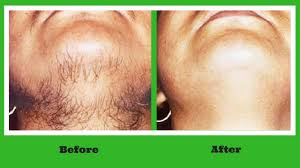 permanent hair removal at home ayurvedic remedy to get rid off unwanted hair