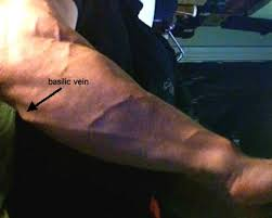Vein Chart For Shooting Up Images Of Veins In Body Part 1 Black Poppys Junk Mail