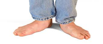 Flat Footed What Are Flat Feet Symptoms Treatment Upmc Healthbeat