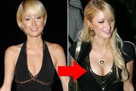 Plastic breast