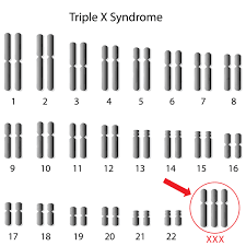 Triple X Syndrome Genetics Home Reference Nih