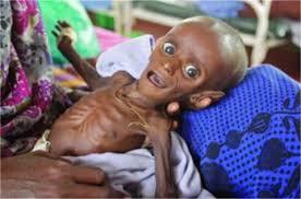 Resultado de imagen para hambruna y genocidio en africa