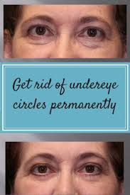 get rid of those dark circles and bags under your eyes permanently stop looking tired when you aren t jennifer greer m d at