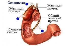 Есть мм Характеристика язвенной болезни двенадцатиперстной кишки Клинический диагноз история заболевания