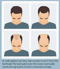 Male Pattern Baldness Causes Beauteous Male Pattern Hair Loss Or Baldness A Fact Sheet Andrology Australia