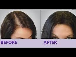 stop hair fall hair growth remes