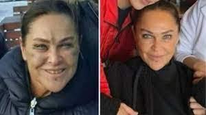 Sosyal medyada yayılan karelerde Hülya Avşar'ın yüzündeki morluk dikkat  çekerken, estetik iddiaları da ortaya atıldı
