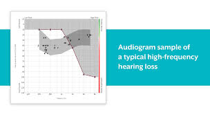 Normal Hearing Range Age Chart What Is High Frequency Hearing Loss