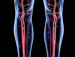 Peripheral Artery Disease-Related Leg Ischemia and Antihypertensive Use -  The Cardiology Advisor