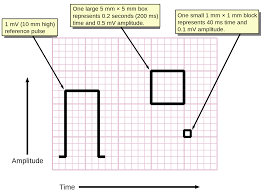 electrocardiography measuring time and voltage ecg graph paper