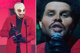 The Weeknd shocks with plastic surgery ...