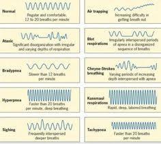 Types Of Breathing Patterns Breath Patterns Cheyne Stokes Biots Respiration Eupnea
