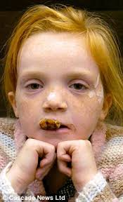 Megan Walker. Ordeal: Megan Walker had her top lip bitter off by a Bull Mastiff. A terrified schoolgirl had her top lip torn off by a dog as she played with ... - article-1315826-0B61C025000005DC-382_233x384