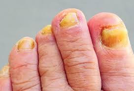 all yellow toenails
