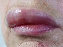 tingling lips or numbness 10 causes