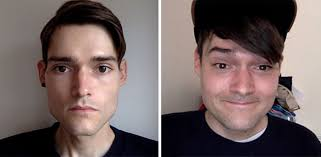 anorexic face before after. Simple Face 72 A Boyu0027s Journey Intended Anorexic Face Before After E