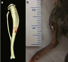 proper strain gauge placement at the tibial midshaft a
