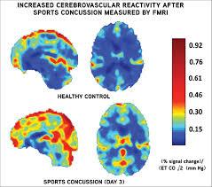 Concussion Grade Chart Concussions Mild Traumatic Brain Injury Knee Sports
