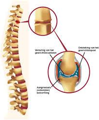 Facetartrose (Artrose rug) Artrose