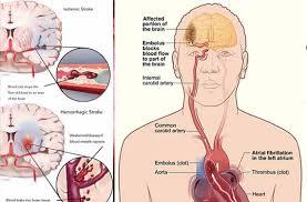 Hasil gambar untuk terapi stroke