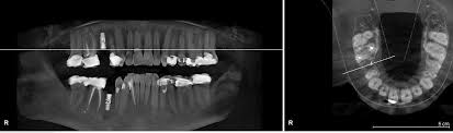 How Safe Are Dental X Rays The Healthy Mouth Project