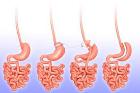 image there are various weight loss surgery techniques from left to right these ilrations show a normal stomach a lap band a gastric byp and a