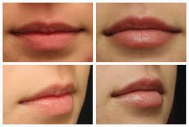 demystifying lip injections here s