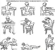 Нарушение осанки у детей Как исправить осанку ребенку в домашних  Причины нарушений детской осанки