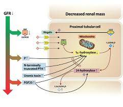 altered vitamin d metabolism in the course of kidney disease progression in chronic kidney disease