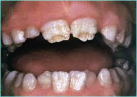 Некариозное Поражение Зубов Реферат antonproskurin Стоматология Некариозные поражения твердых тканей зуба