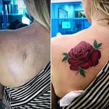 Cancellare Tatuaggi Come Ha Fatto Fedez E Come Puoi Farlo Tu
